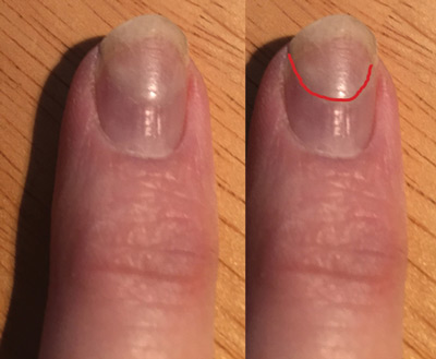 Here Is A Nail That Was Put On 3 Months Ago And Still Holding Well Looking Ok